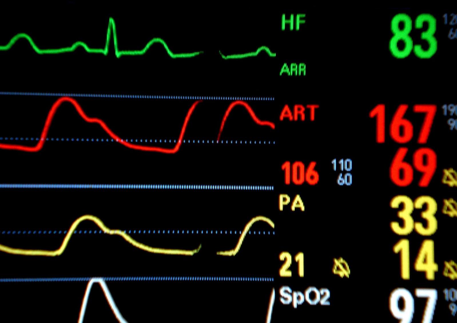 medical-monitoring-1306439-1598x1131